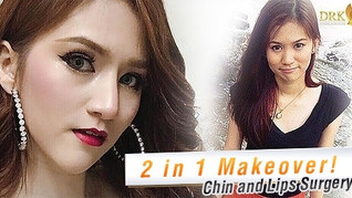 LIPS & CHIN BEAUTY MAKEOVER!