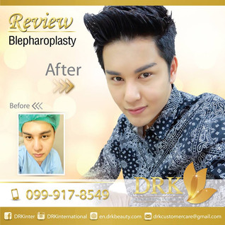 Expressive Manly Eyes : Upper Eyelid Surgery with Dr. Korn
