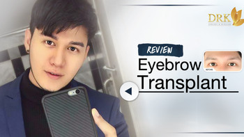 Real Eyebrow for Real Men! Up to 99% hair survival! Eyebrow Transplant by DRK!