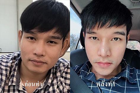 Chin augmentation VShape