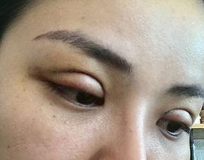 Double Eyelid VSHAPE