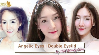 Lovely Korean Eyes through Double Eyelid Surgery