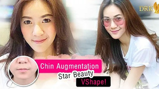 Vshape and a balance face with prominent chin!