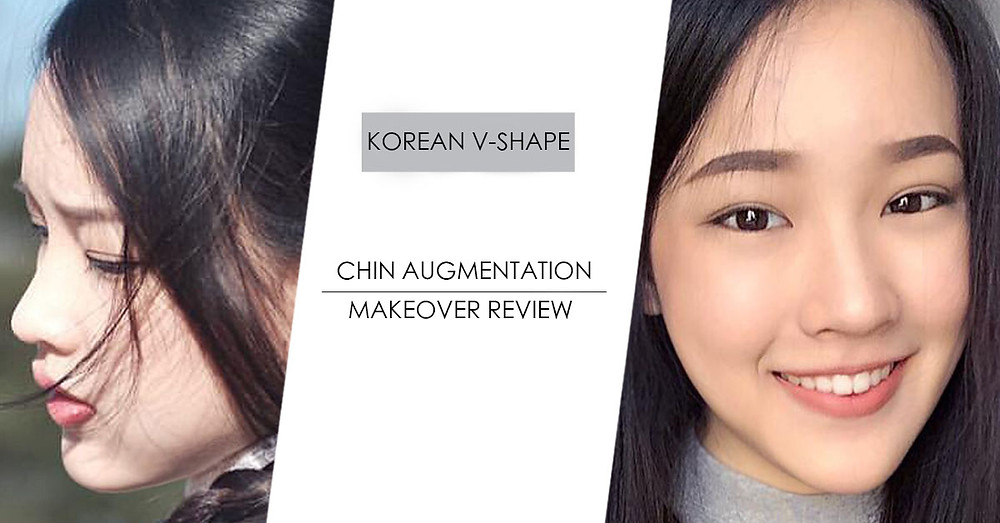 Vshape Chin Augmentation