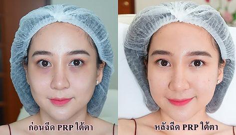 PRP Rejuvenation