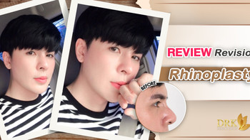 Redesign Nose Line for more natural and handsome look! DRK Rhinoplasty did better!