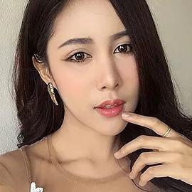 Forehead Augmentation