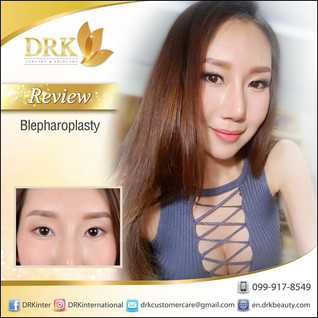 Lovely Eyes : Double Eyelid Surgery by Dr. Korn