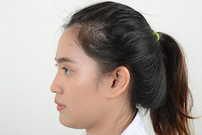 Rhinoplasty Nose Review