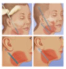 AW ภาพประกอบบทความ Endotine-03.jpg