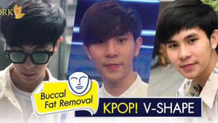 Manly face without fat : Buccal Fat Removal by Dr. Kolawach