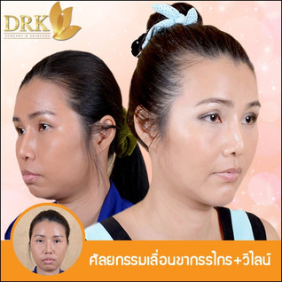 Jaw Alignment Surgery with Dr. Chanchai
