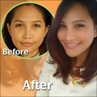 Slim Cheeks through Buccal Fat Removal by Dr. Kolawach