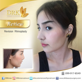 Redesign Nose Line by Dr. Kolawach