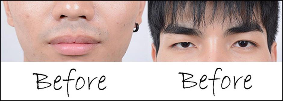 Lip Reshape + Double Eyelid