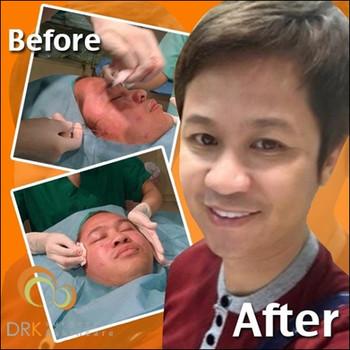 Face lifting through Thread Lift by Dr. Kolawach