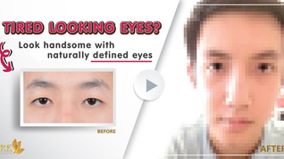 Double eyelid for better vision and better look!