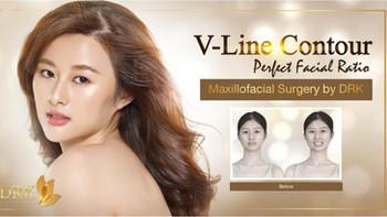 Perfect Facial Ratio with V-Line Contour through Maxillofacial Surgery by DRK