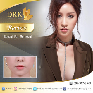 Slim Cheeks for Sexy Face: Buccal Fat Removal by Dr. Kolawach