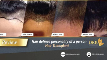 Regain Confidence with Fuller Hair through Hair Transplant