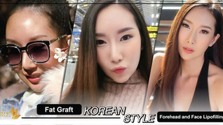 Korean Face with Fat Graft Lipofilling