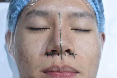 rhinoplasty alarplasty