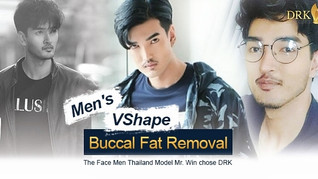 Model VSHAPE Chiseled Man look through Buccal Fat Removal