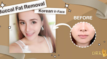 Slim Sexy Face Contour through Buccal Fat Removal by DRK