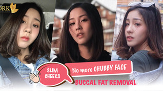 No more chubby cheeks with Buccal Fat Removal surgery by DRK