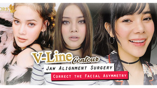 Jaw Alignment Surgery by Dr. Chanchai and Dr. Kolawach
