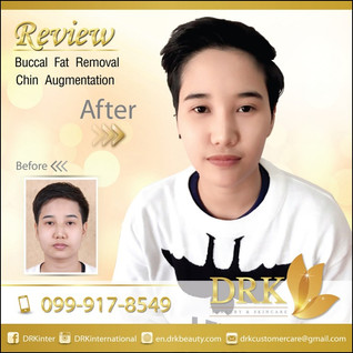 Kpop Slim Cheeks: Buccal Fat Removal and Chin Augmentation by Dr. Kolawach
