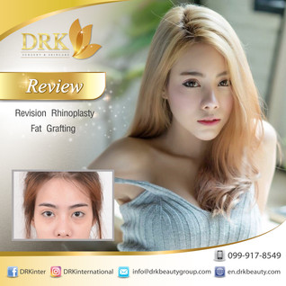 Korean Beauty to look younger and lovely, Revision Rhinoplasty and Fat Graft filler by Dr. Beer
