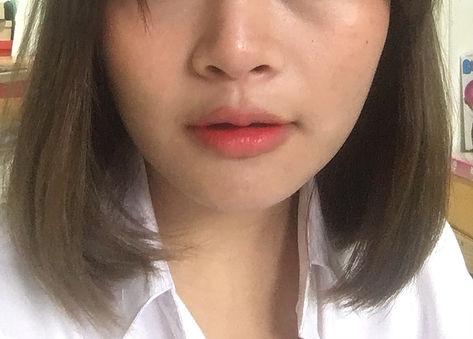 Lips Reshape Surgery