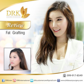 Heart Shaped facial contour through Fat graft Stem cell enriched by Dr. Beer