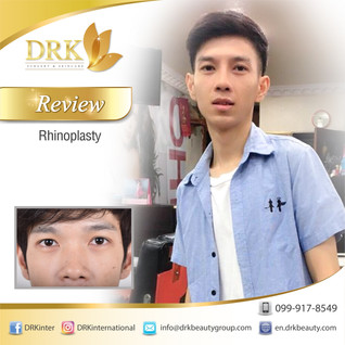 Men Rhinoplasty: Enhance the shape of the nose for more handsome look!
