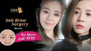 No more sad eyes with Sub Brow Surgery at DRK