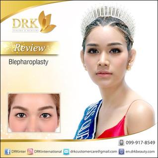 Lovely Bright Eyes Blepharoplasty by Dr. Korn