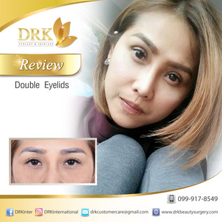 Enhance Eyelid for a Younger looking eyes by DRK