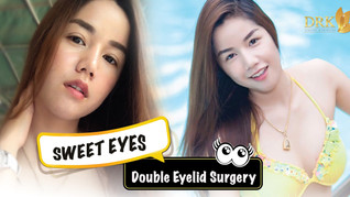 Naturally beautiful eyes give me confidence! Double Eyelid surgery at DRK is magic!