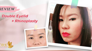2X More Beautiful with COMBO Double Eyelid and Rhinoplasty Surgery!