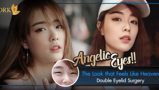 Natural Pretty Eyes through Double Eyelid surgery with Dr. Kolawach