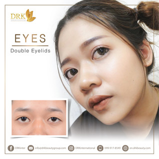 Transform your eye shape through Double Eyelid Surgery with DRK