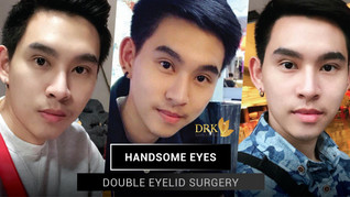 HANDSOME LOOKING EYES! Double Eyelid surgery made me MAGNETIC!