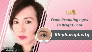Blepharoplasty made me look 10 years younger!