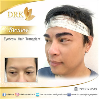 Hairless eyebrows to a longer and thicker eyebrows with PERMANENT result with DRK