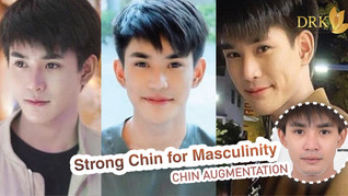 Chiseled face for Men Chin Augmentation