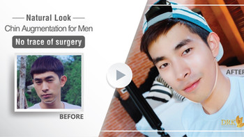 A weak chin is forever an enemy of masculinity- Improve chin prominence through Chin Augmentation.