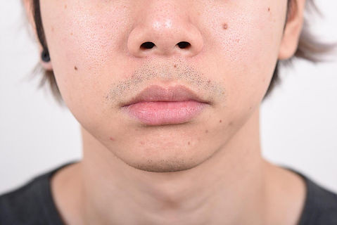 CHIN AUGMENTATION ALARPLASTY