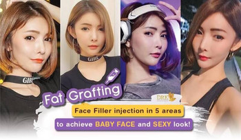 Korean Curve Face Style by Lipofilling technique