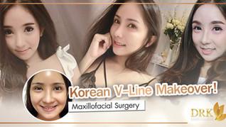 """V-Line Contour through Facial Bone Surgery """"Life-changing surgery"""""""